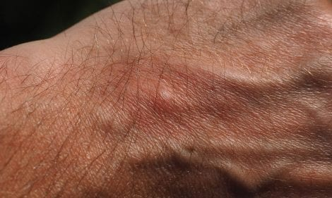 What to do when an ant bites you