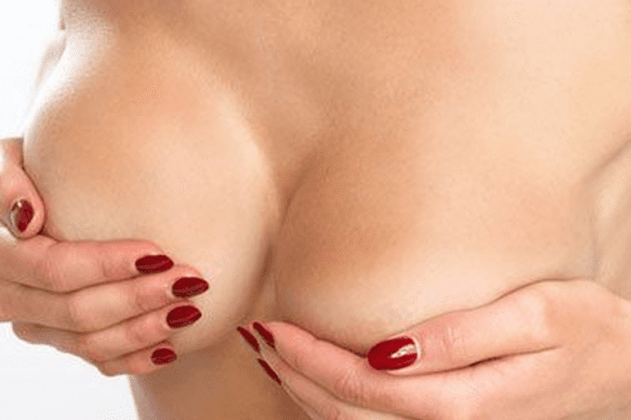Breast Augmentation – Proportion & Femininity