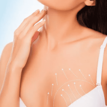 Considering Breast Enhancement Surgery