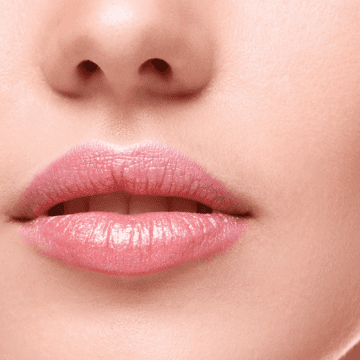Rejuvenate Your Smile And Lips With Lip Augmentation In Newcastle