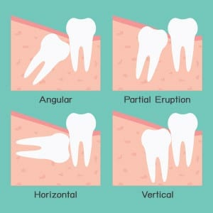 wisdom-teeth-impacted-partially-erupted-300x300