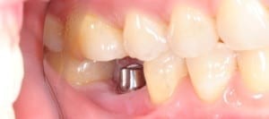 What are dental implants and why are they used to replace teeth?