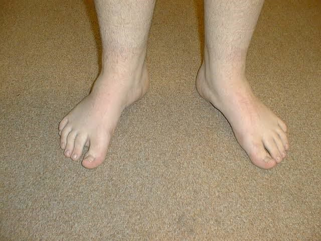 Treatment for Out Toeing in Children