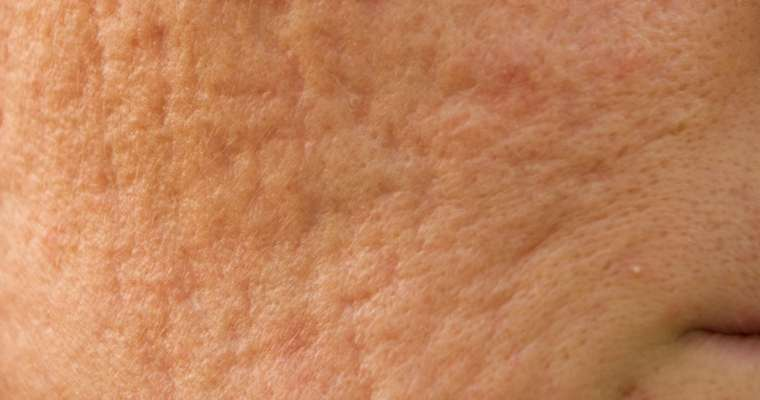 Therapeutic Interventions for Acne and Acne Scars