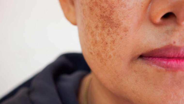 Laser Skincare For Pigmentation