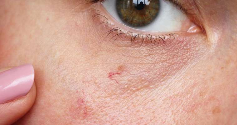 Laser Skincare Treatment For Superficial Facial Veins